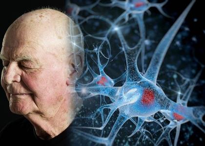 Особенности ухода за людьми с заболеваниями головного мозга